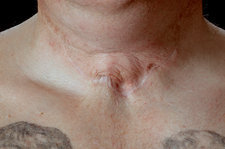 Scar revision before surgery