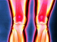 Knees, coloured X-ray