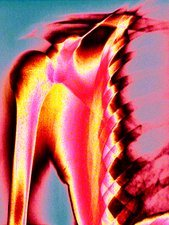 Shoulder, coloured X-ray
