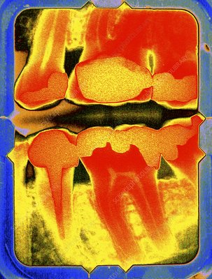 Teeth and fillings, coloured dental X-ray