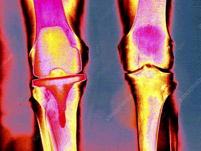 Knee replacement, coloured X-ray
