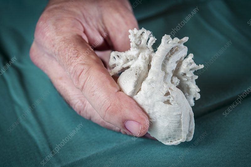 Child's heart, 3D printed model