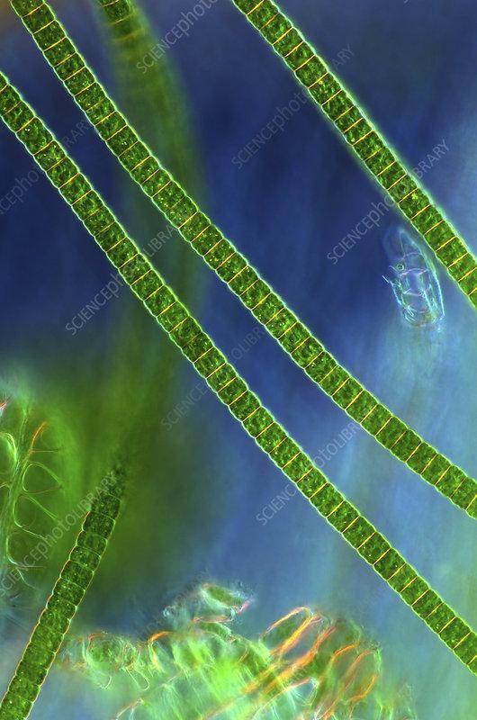 Desmids on sphagnum moss, micrograph