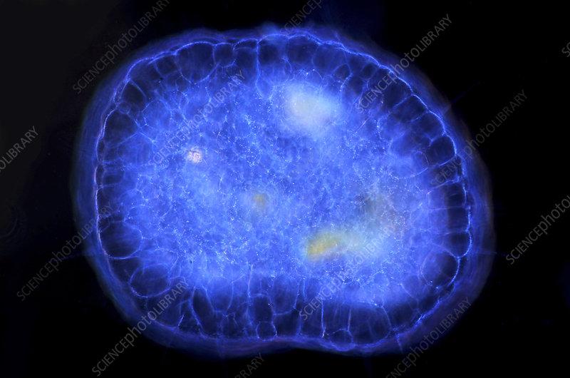 Actinosphaerium protozoan, micrograph