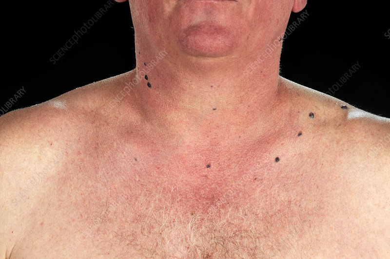 Blue Rubber Bleb Nevus Syndrome Stock Image C025 9624 Science Photo Library