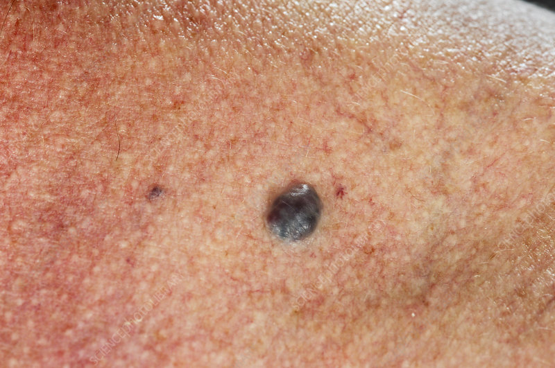 Blue rubber bleb nevus syndrome