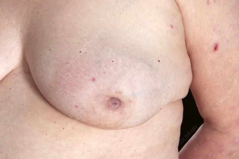 Fibrocystic Breast Changes