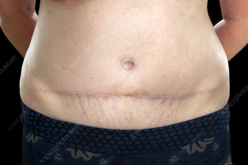 Breast reconstruction scar