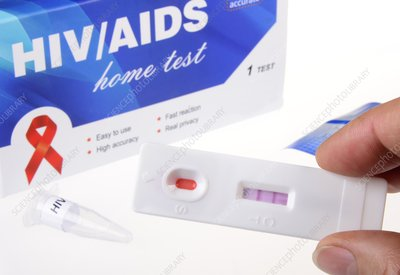 HIV home blood test, positive