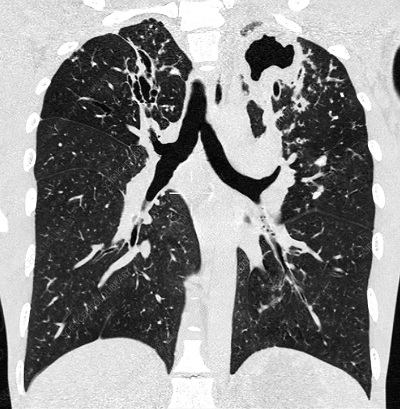 Tuberculosis of the lung, CT scan