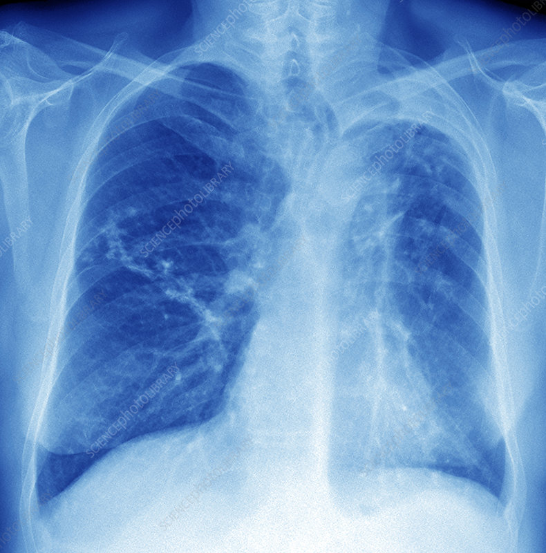 Tuberculosis of the lung, X-ray