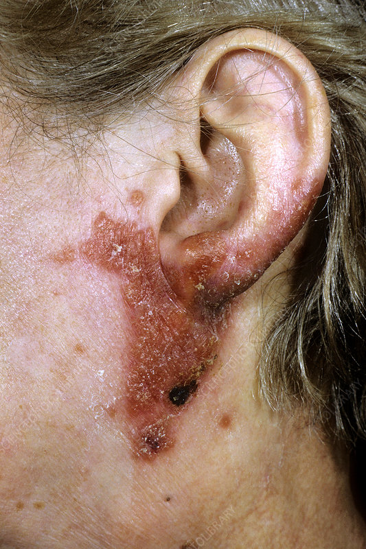 Tuberculosis on the face