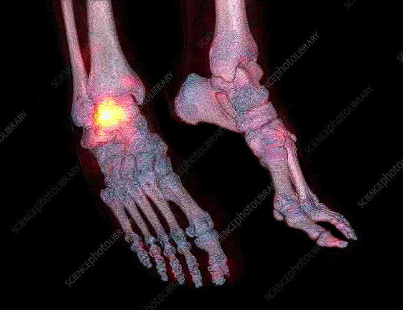 Osteoarthritis of the ankle, CT and SPECT