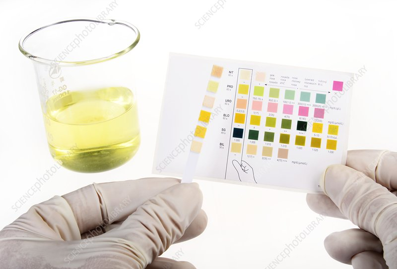 Home urine test