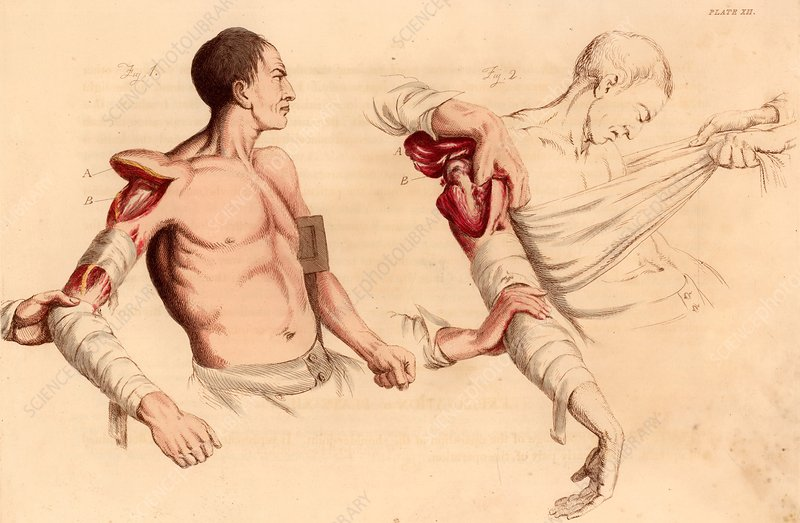 Amputation of the arm at the shoulder