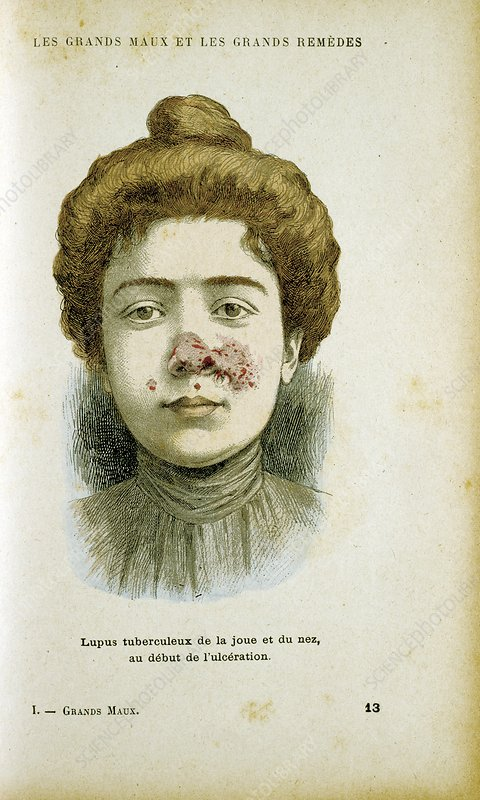 Woman with lupus vulgaris