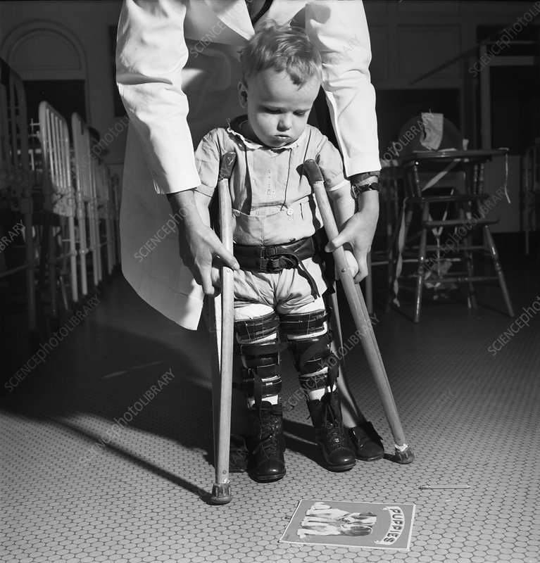 Paediatric physical therapy, 1940s