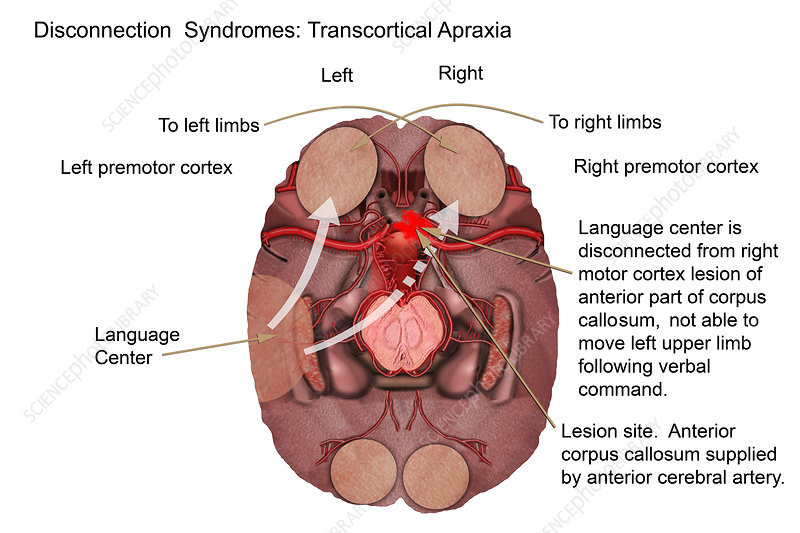 Transcortical apraxia, illustration