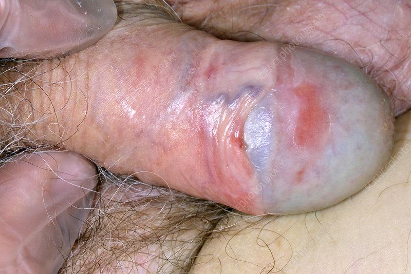 erekció 13-kor szőrtelenítés erekció
