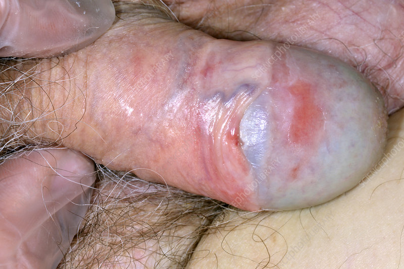 Regret, strep infection on penis
