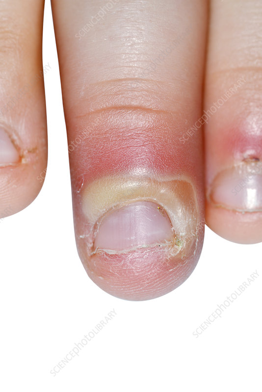 Paronychia infection of the finger