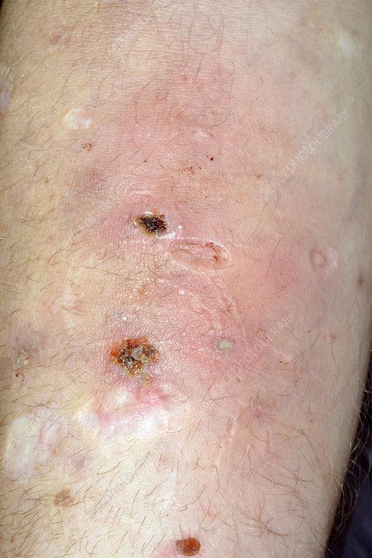 Cigarette burn scars in self-harm - Stock Image - C026/3277