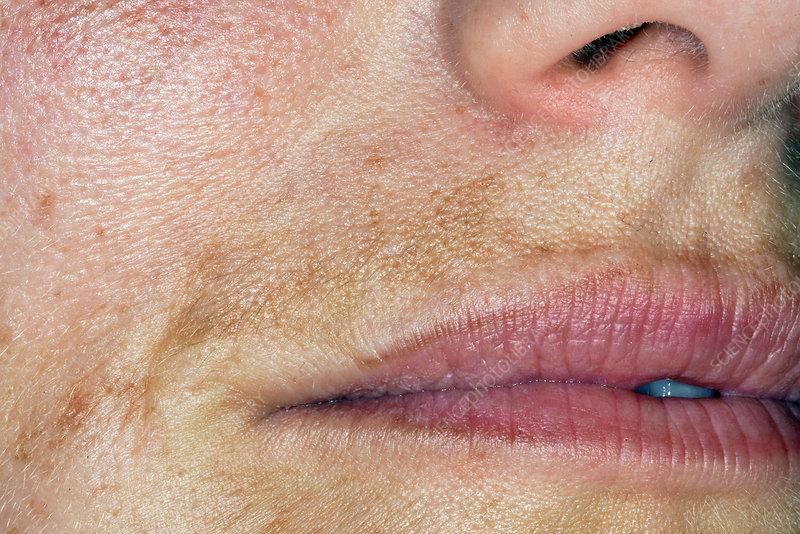 Melasma of the face