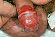 Zoon's balanitis of the penis