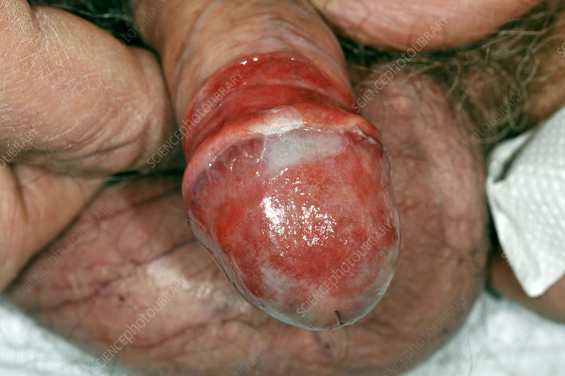 Adult penis foreskin posthitis pathology