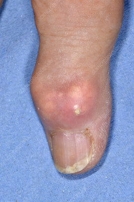 Gout of the finger