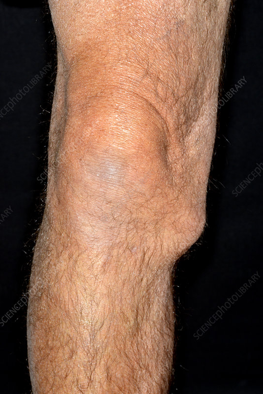 Torn knee ligament