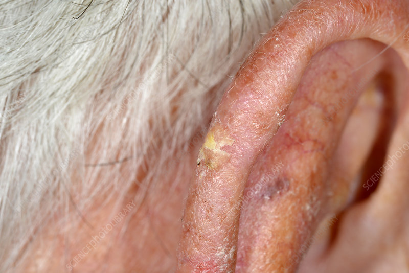 Solar keratosis of the ear