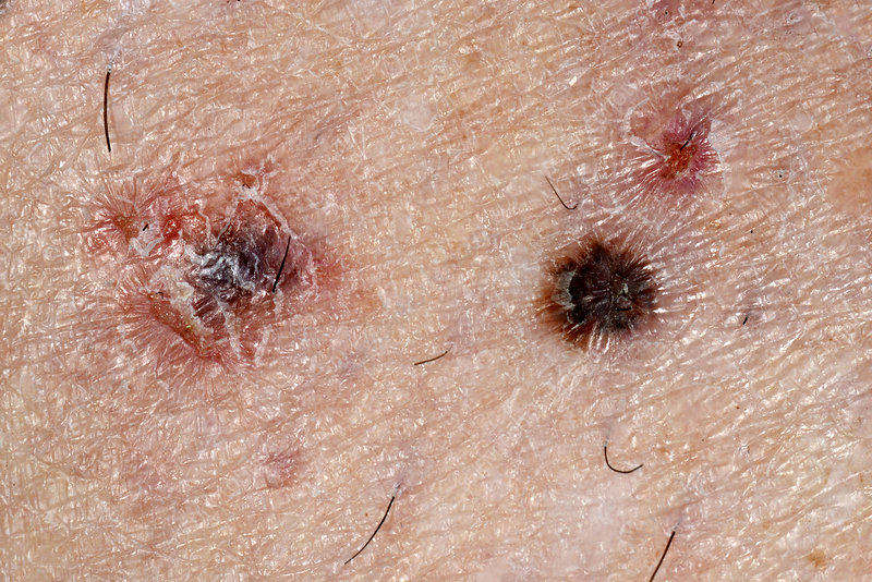 Skin cancer and non-cancerous lesion - Stock Image - C026