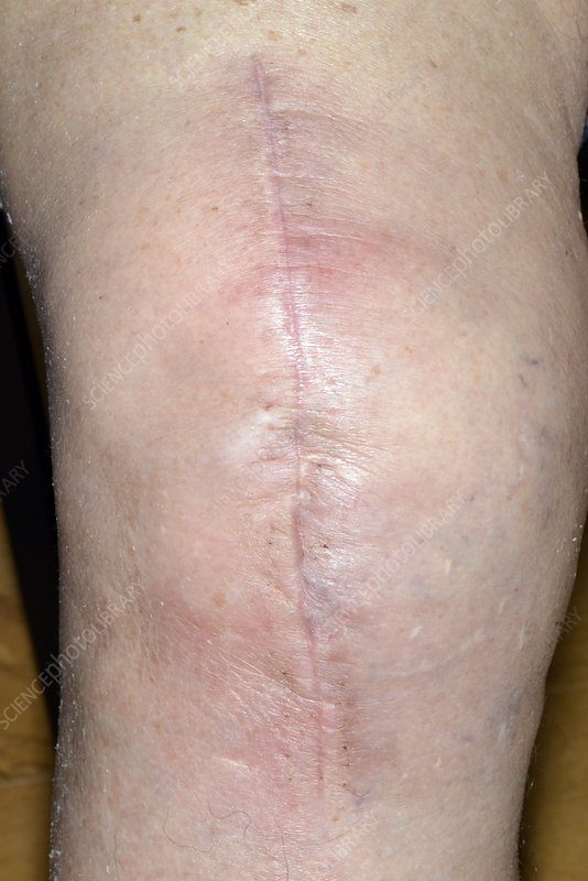 Infected total knee replacement wound