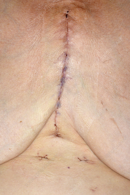 Coronary bypass graft wound