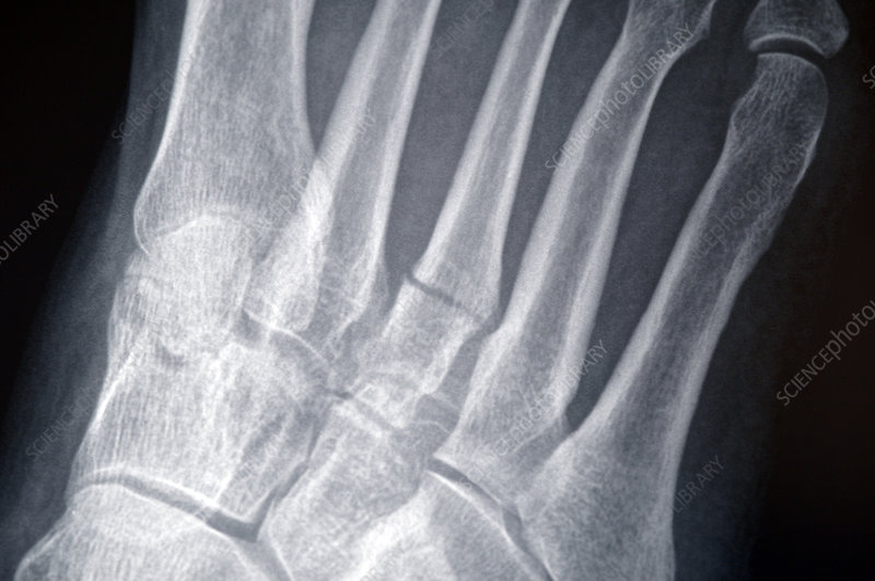 Broken toe, X-ray