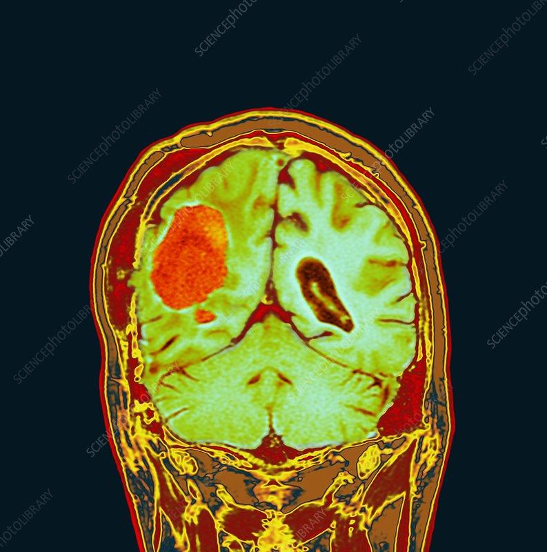 Brain cancer after surgery, MRI