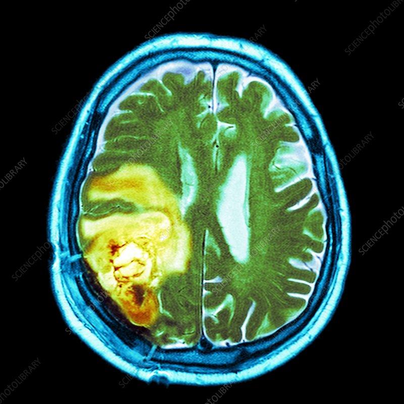 Brain cancer, MRI