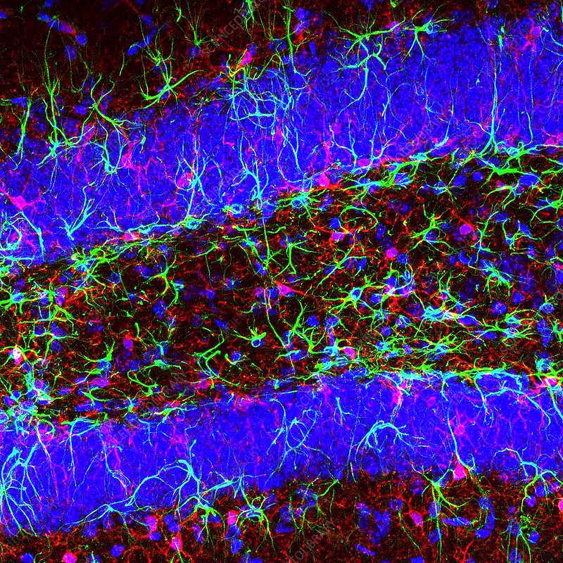 Brain cells, fluorescence micrograph