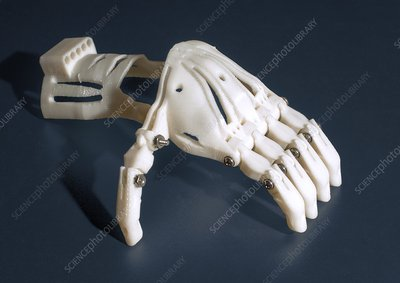 3D printed prosthetic hand
