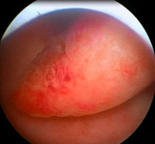 Endometrial polyp, endoscope view
