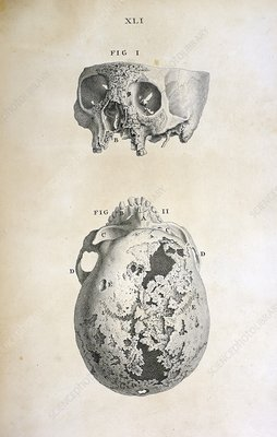 Diseased human skull, 18th century