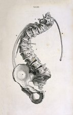 Spinal curvature, 18th century