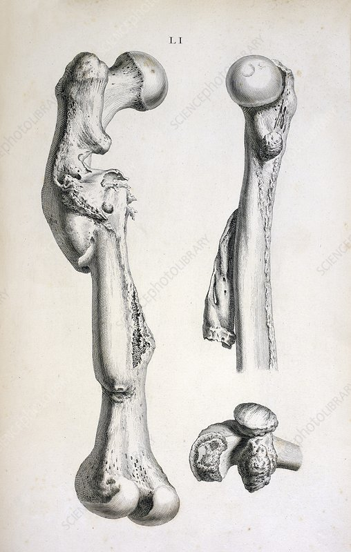 Bone deformities, 18th century