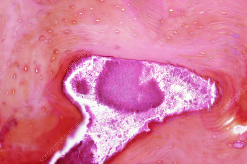 Actinomycosis bone infection, micrograph
