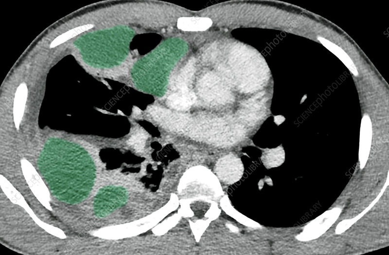 Pleurisy, CT scan