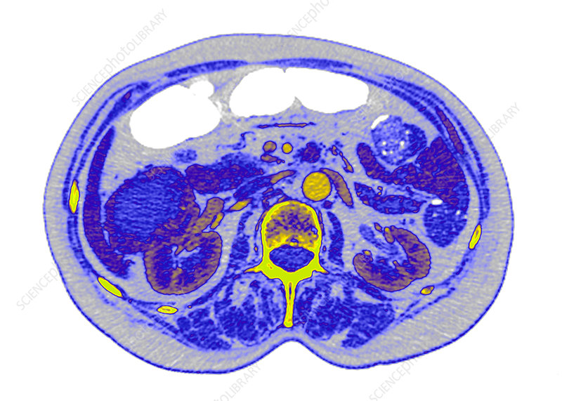 Kidney cancer, CT scan