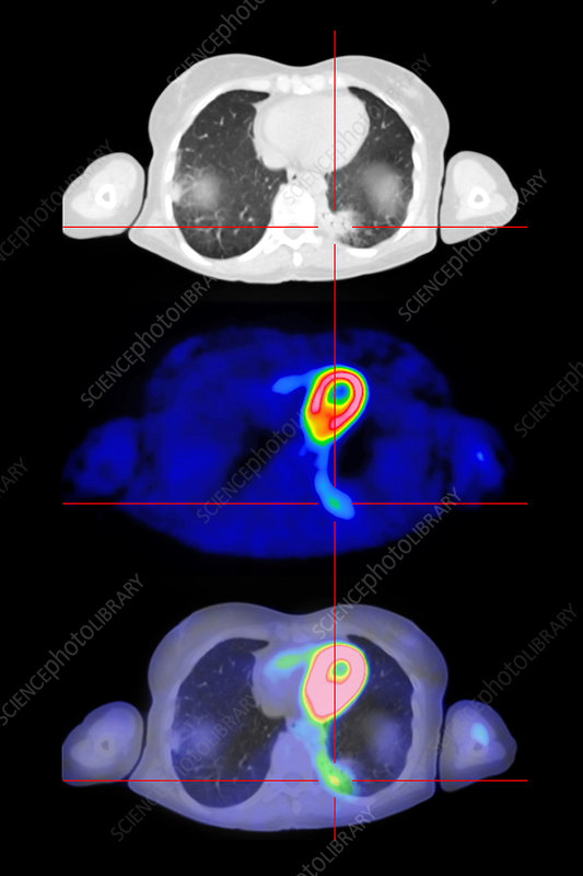 Lung cancer, PET and CT scan