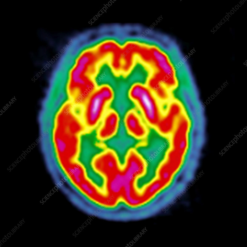 Normal brain activity, PET scan