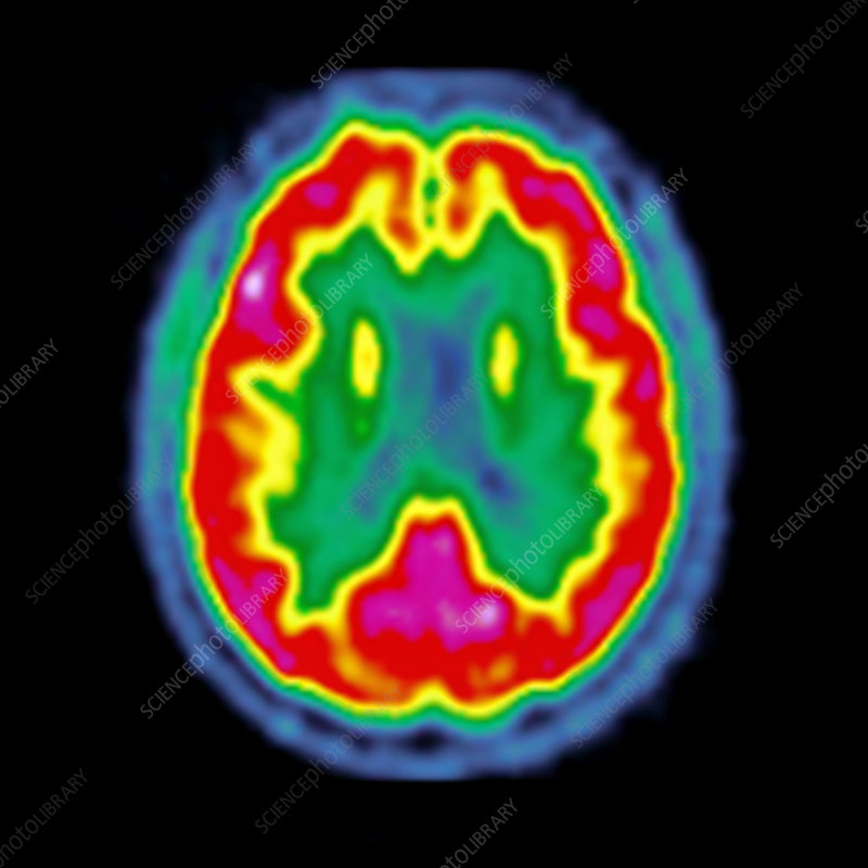 normal brain activity  pet scan - stock image c026  7612